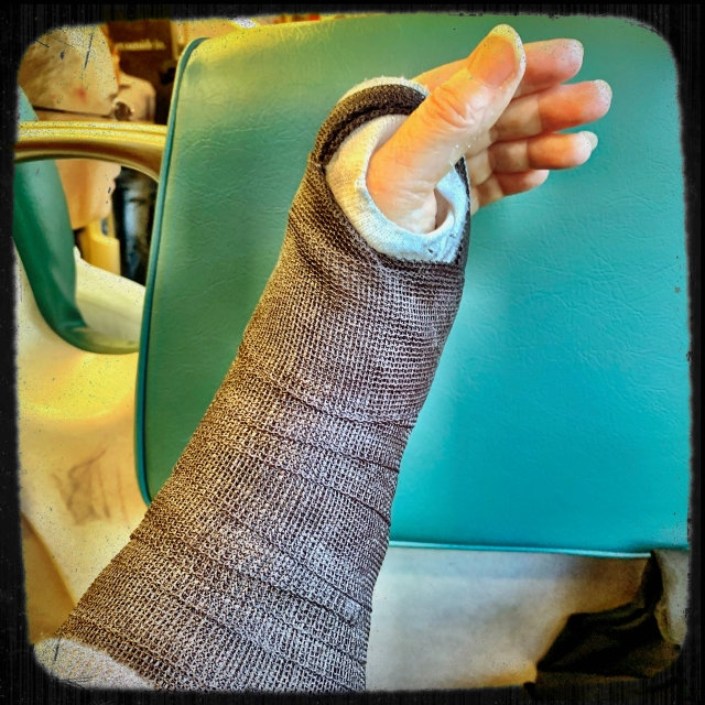 arm in a black fiberglass cast